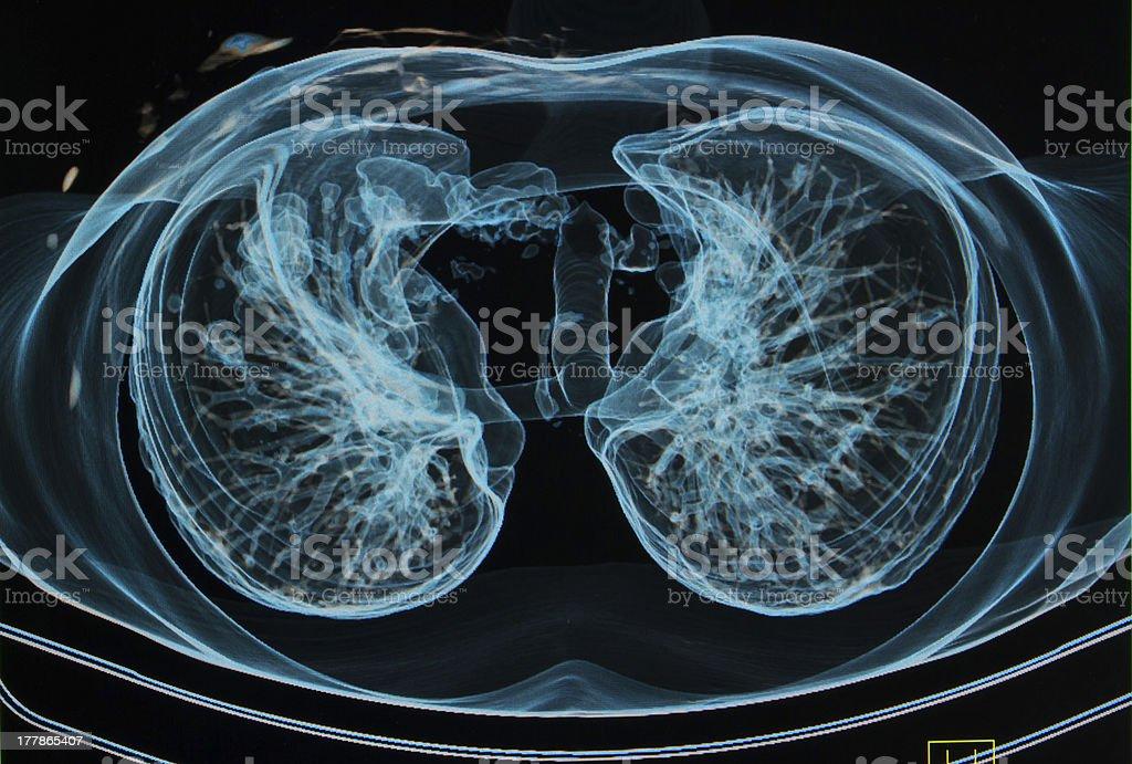 Las Radiografías De Tórax En 3d Imagen Pulmones Sagital Avión ...