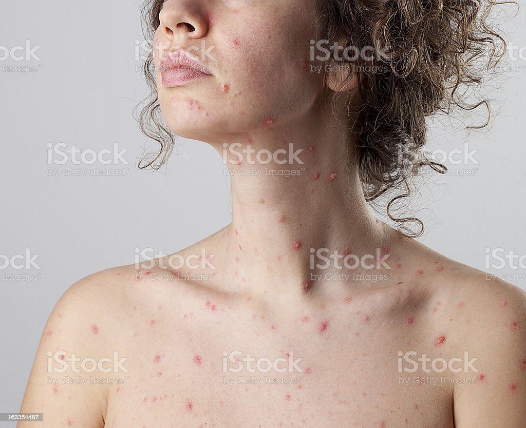 https://media.istockphoto.com/photos/chickenpox-varicella-zoster-virus-picture-id163354487?k=6&m=163354487&s=612x612&w=0&h=EtRngJln5XS8MjEtmYlSvjxuUKCO5nI0fOm_yojVA0s=