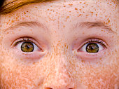 Child & Eyes Wide Open, Irish Redhead Freckle Face Surprised Girl