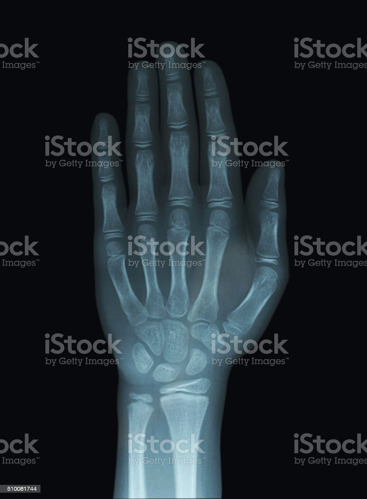 Child Hand X-Ray Unclosed Epiphysis stock photo