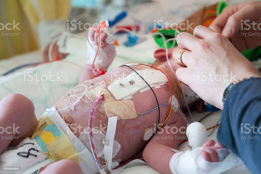 Child intensive care, mother and son. stock photo