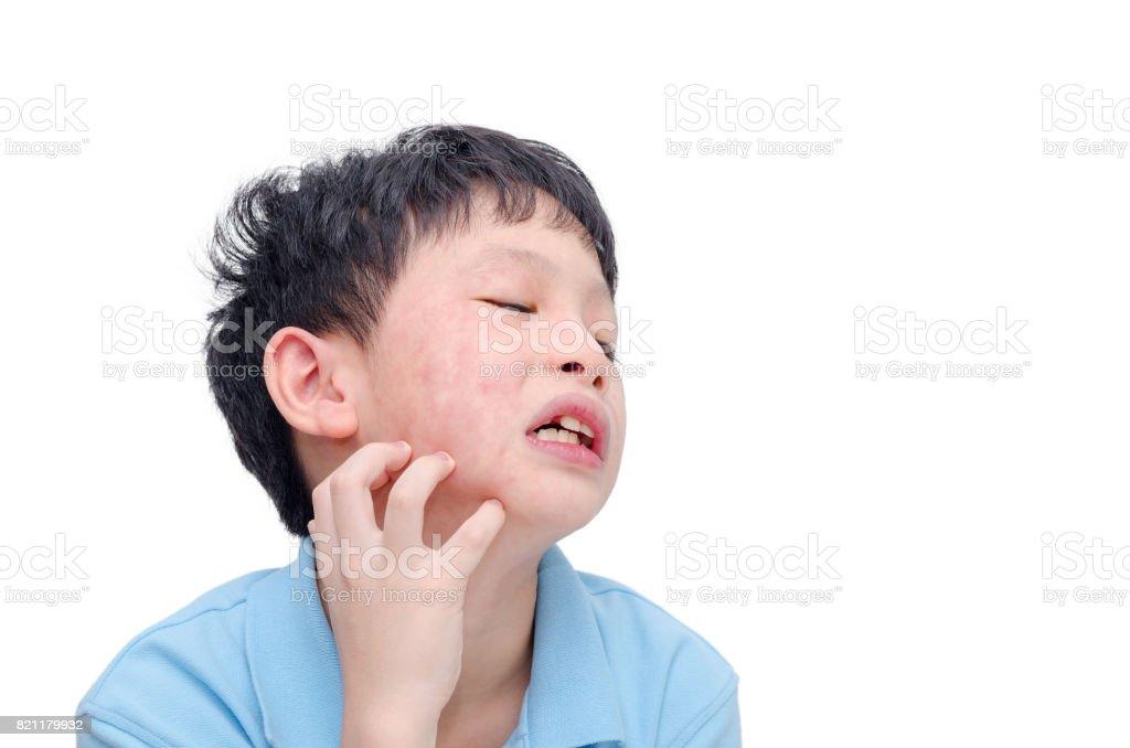 child skin with rash stock photo