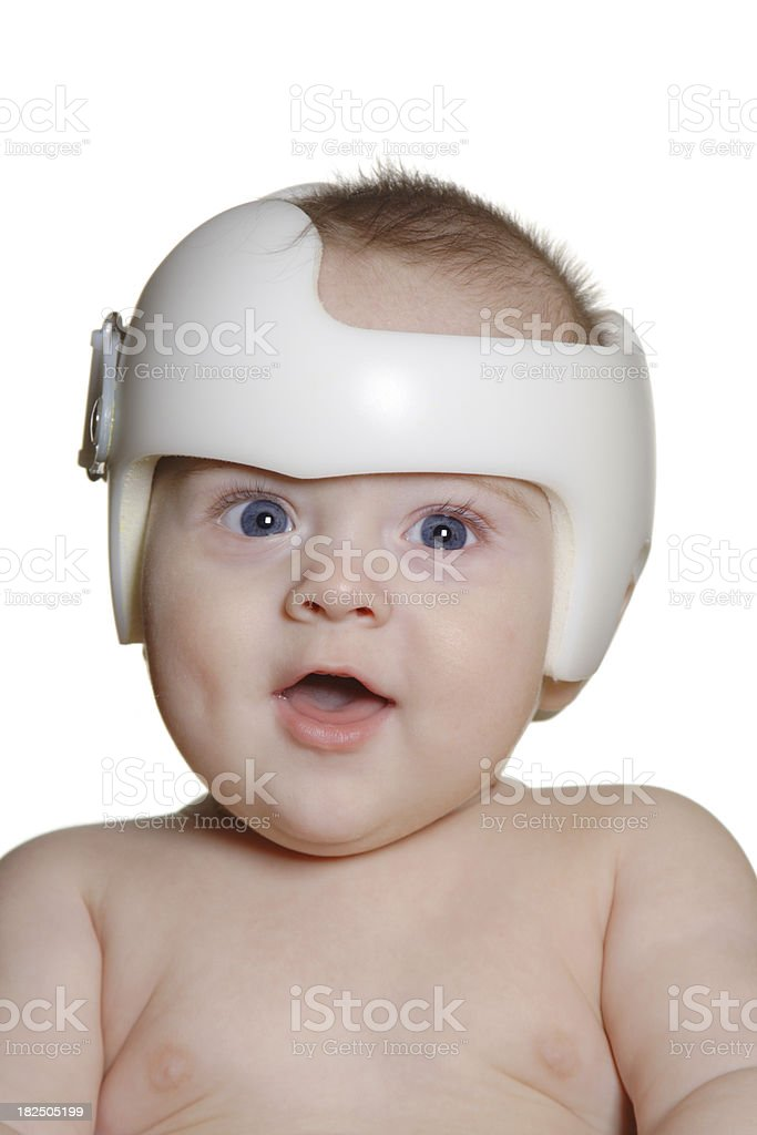 Child wearing band for Plagiocephaly royalty-free stock photo
