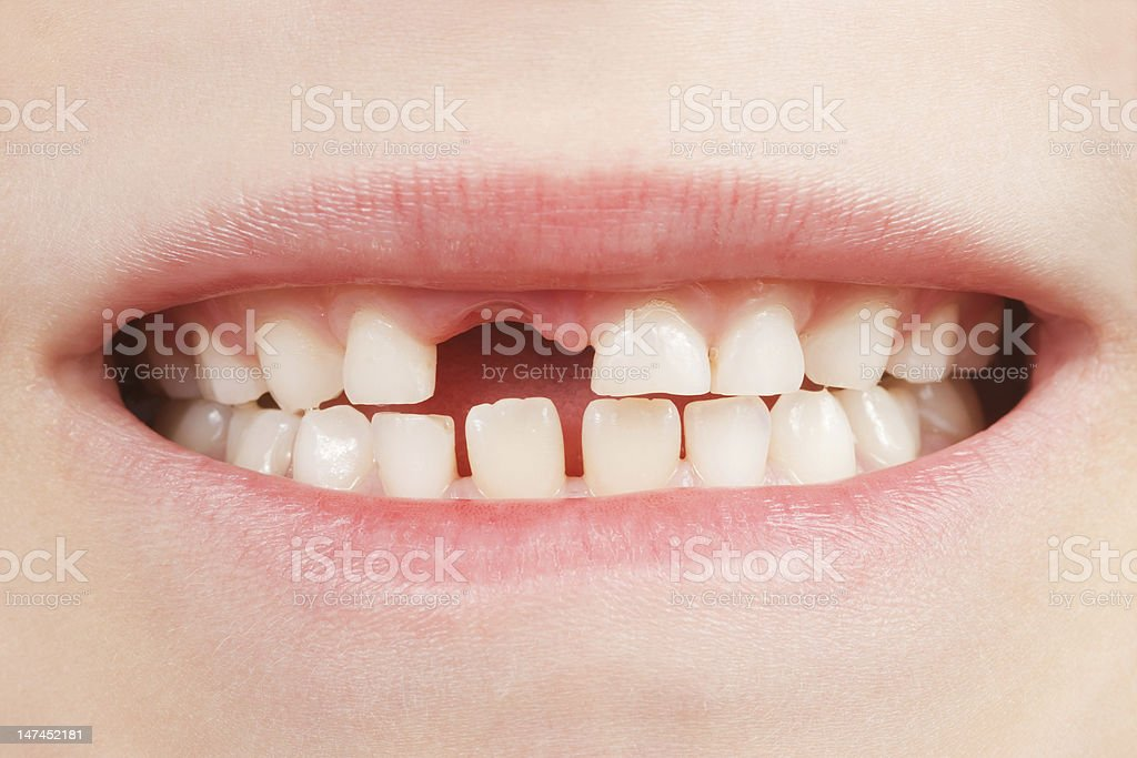 Child with a tooth space stock photo