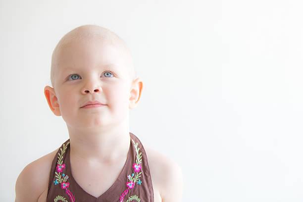 criança com cancro retrato olhando para cima - infância - fotografias e filmes do acervo