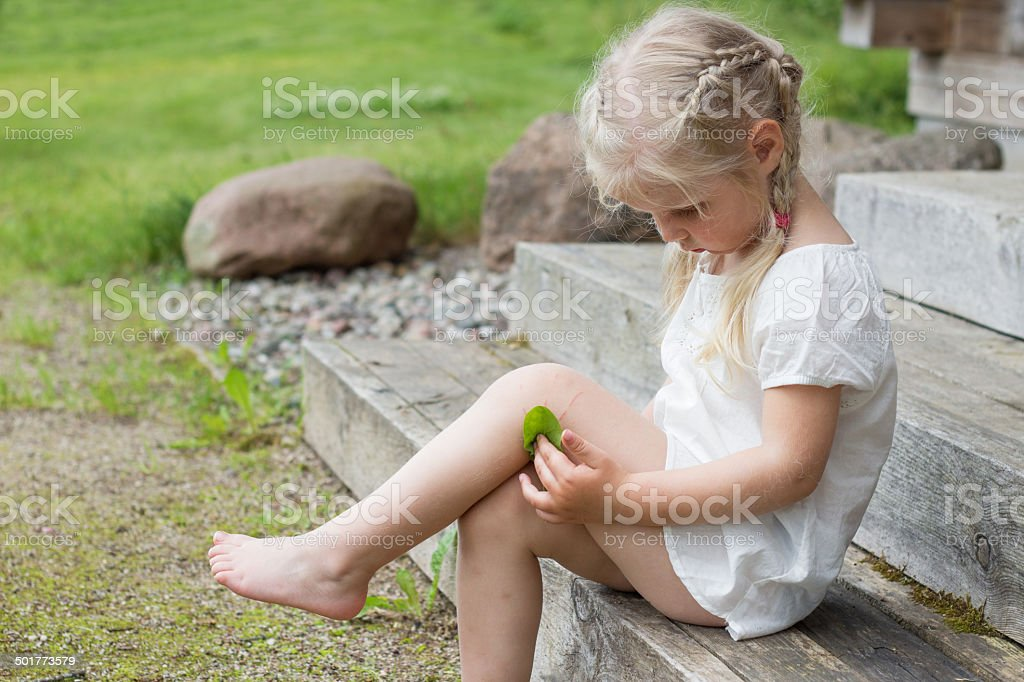 Child with injury on knee stock photo
