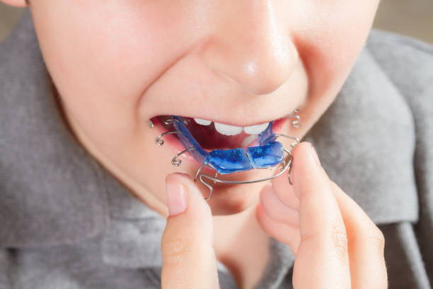 child with orthodontic appliance. boy holds an orthodontic appliance in his hand - defection stock photos and pictures