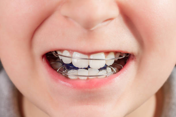 child with orthodontic appliance close-up - defection stock photos and pictures