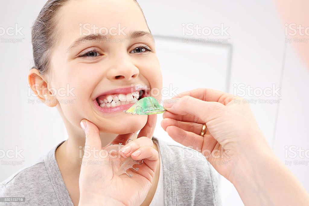 Child with orthodontic appliance stock photo