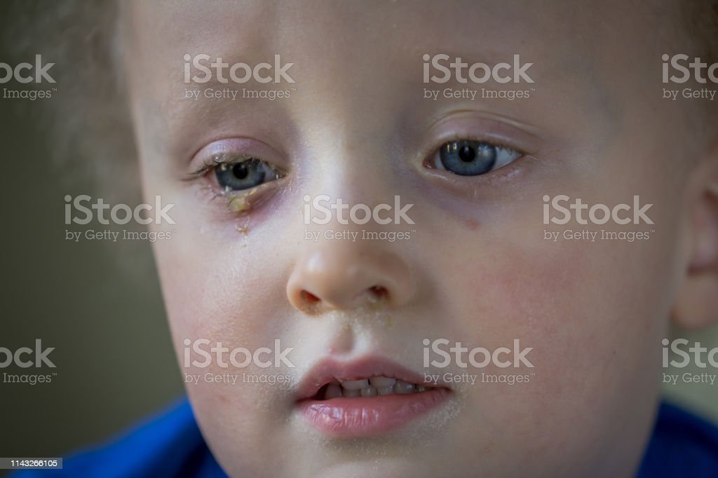infección ocular conjuntiva