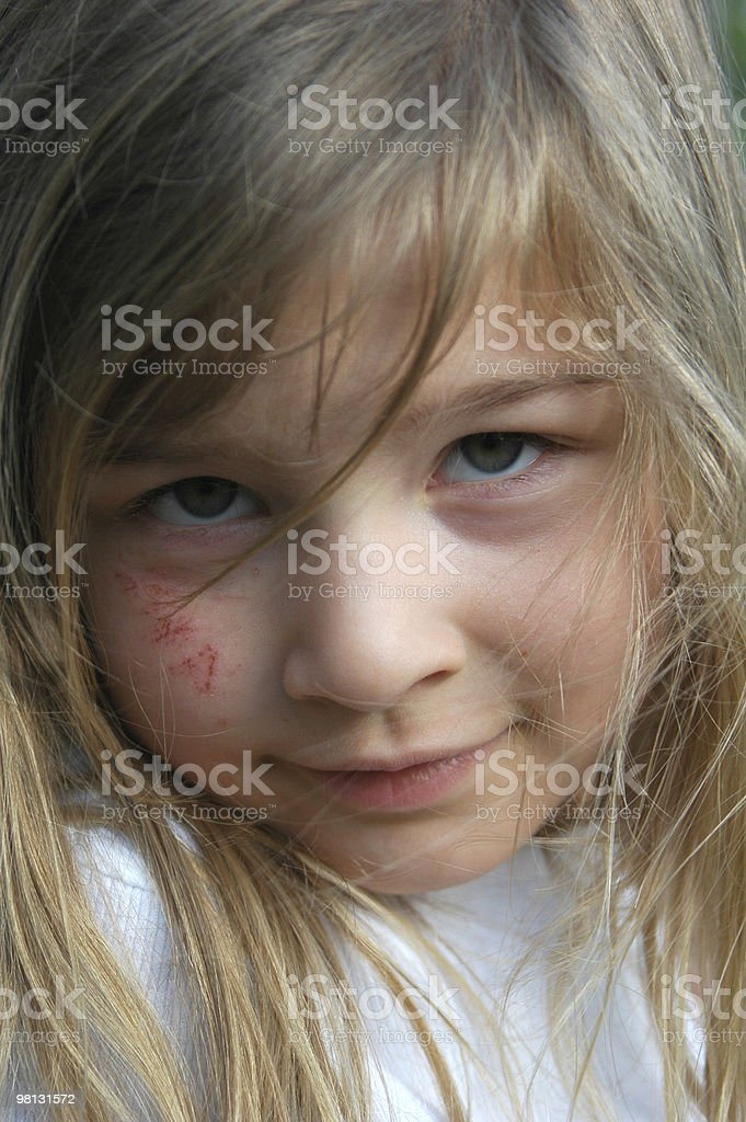 Child with scrapes royalty-free stock photo