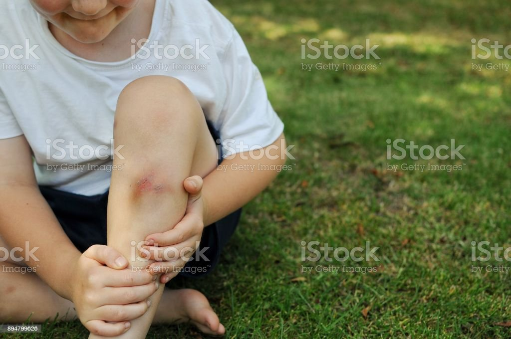 Childhood injuries stock photo