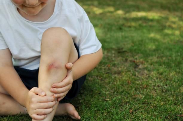 Childhood injuries stock photo