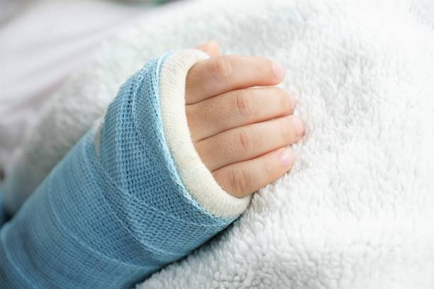 Children hand bone broken stock photo