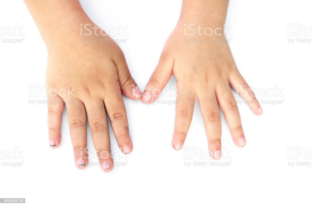 Children long nails isolated on white background.Children dirty nails isolated stock photo