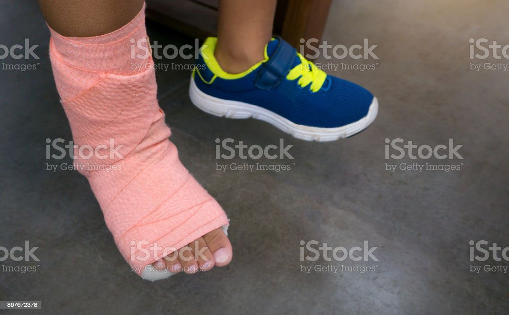 Children wearing a splint of leg broken from injury stock photo