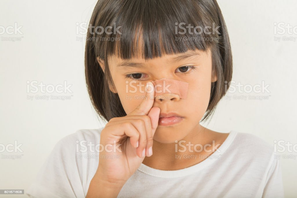 Children with wounds on the nose stock photo