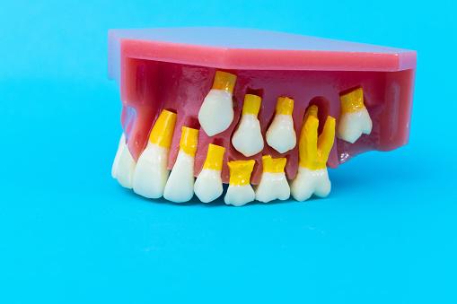 Children's teeth model on blue background.