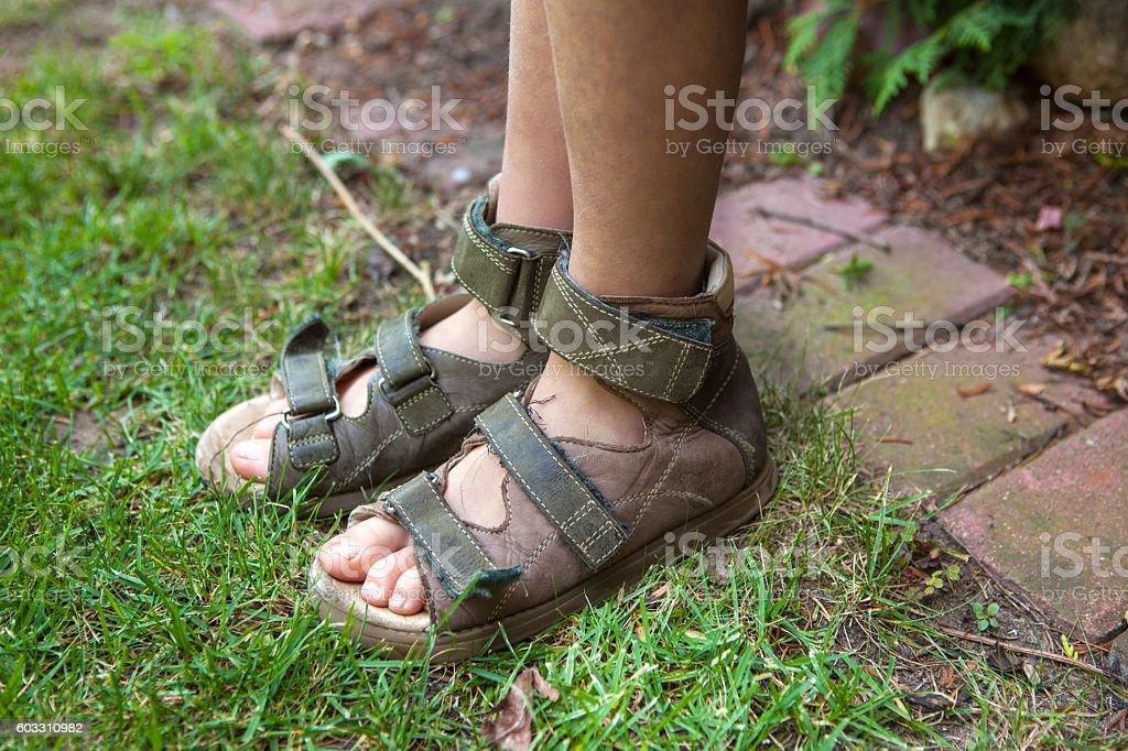 Child's legs in orthopedic sandals - foto de acervo