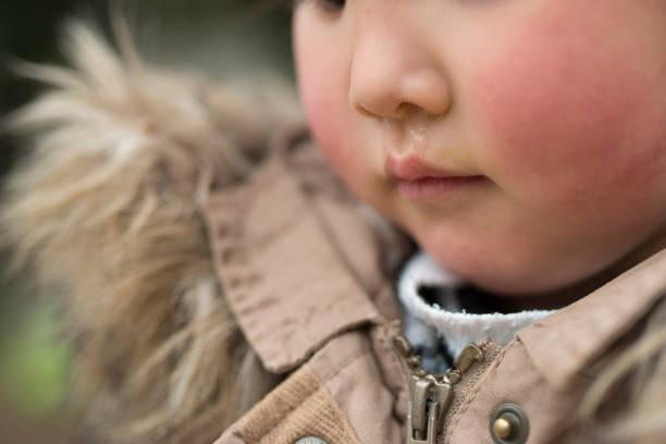 Child's nose runny stock photo