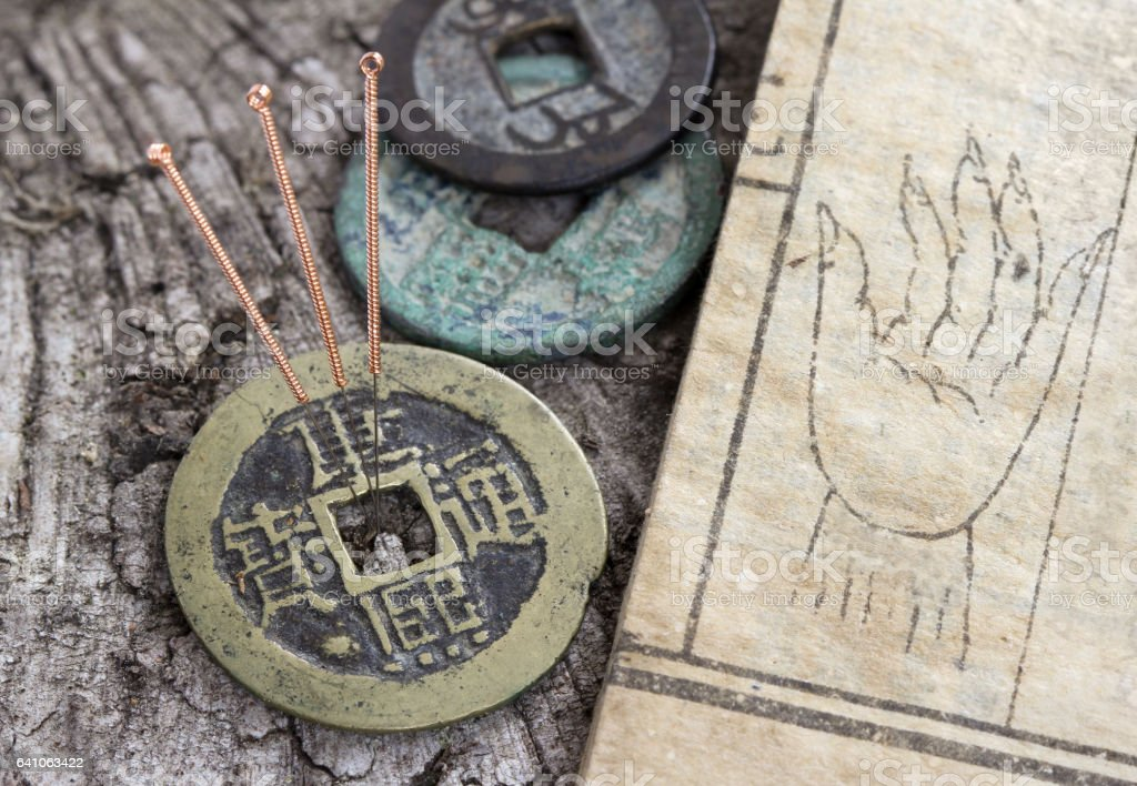 Chinese acupuncture needles - foto de stock