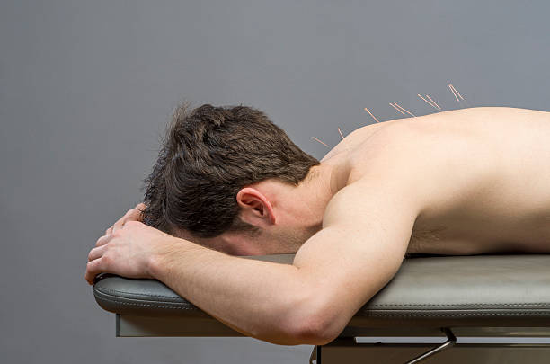 Chinese medicine doing acupuncture to man patient stock photo