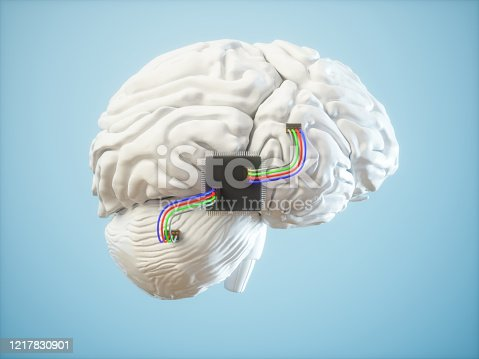 Chips Inserted In Brain. Artificial Intelligence Concepts.