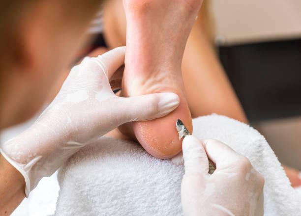 podologue supprime la peau sur une verrue - verrue pied photos et images de collection