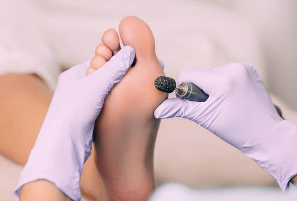 chiropodist treating a patient's foot, pedicure treatment - podologo foto e immagini stock