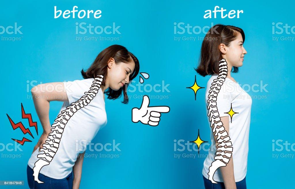 chiropratique avant après l'image. de mauvaise posture pour une bonne posture. corps de femme et de la colonne vertébrale. - Photo