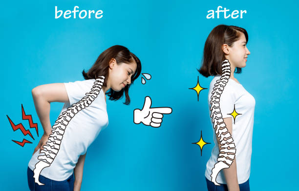 chiropractic before after image. from bad posture to good posture. woman's body and backbone. - chiropractic care stock photos and pictures