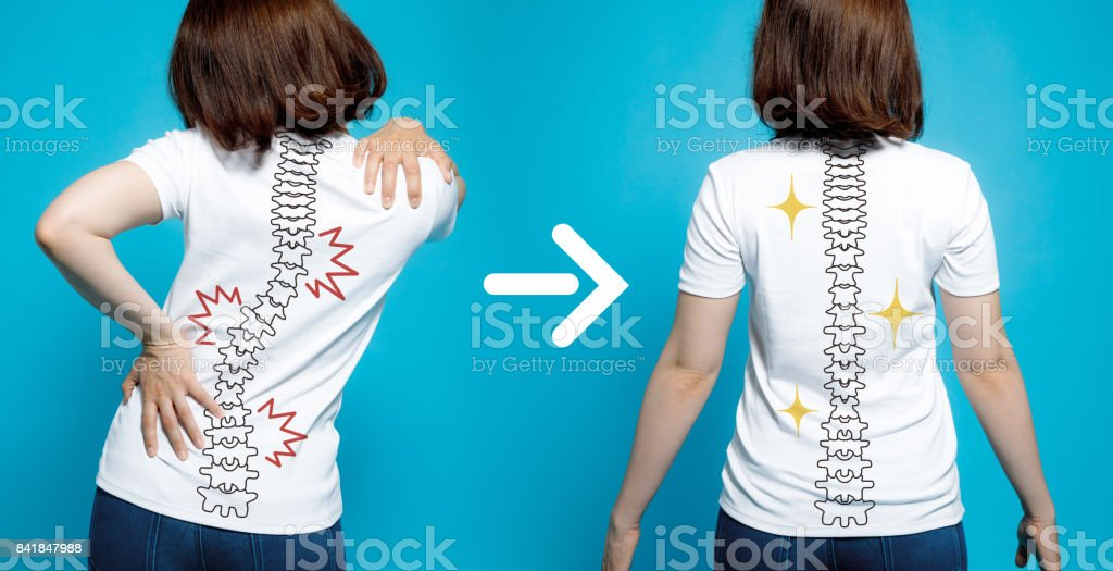 chiropractic before after image. from bad posture to good posture. woman's body and backbone. royalty-free stock photo