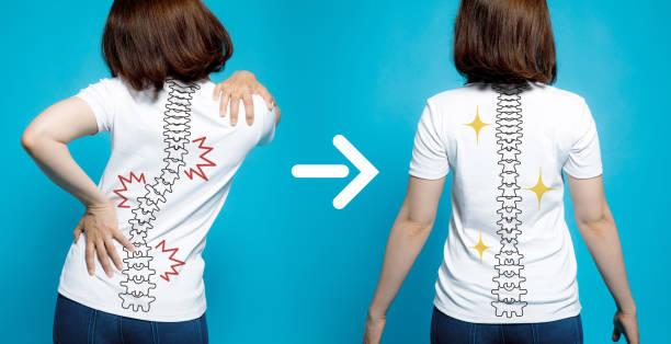 chiropractic before after image. from bad posture to good posture. woman's body and backbone. - poprawna postawa zdjęcia i obrazy z banku zdjęć