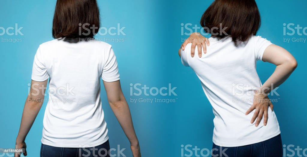 chiropractic before after image. from bad posture to good posture. woman's body and backbone. stock photo