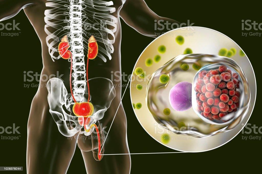 uretritis en hombres ahora