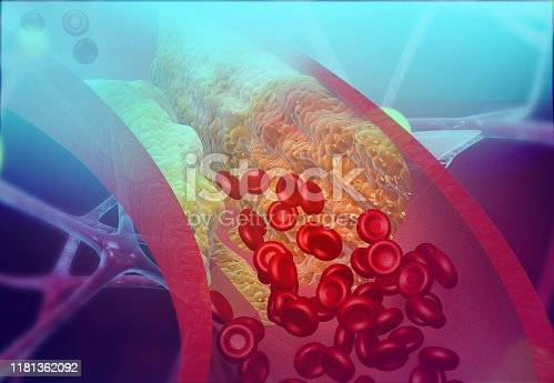 Cholesterol blocking artery. 3d illustration
