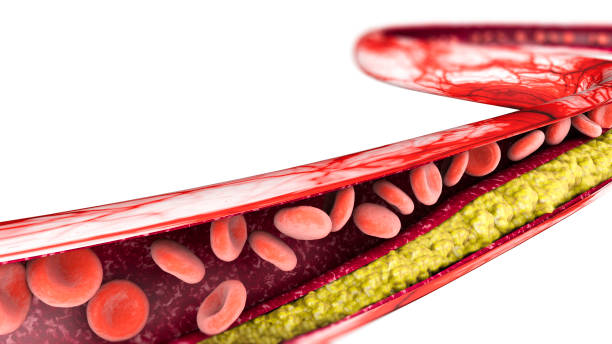 Cholesterol formation, fat, artery, vein, heart stock photo