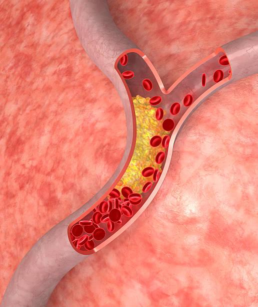 Cholesterol in artery stock photo