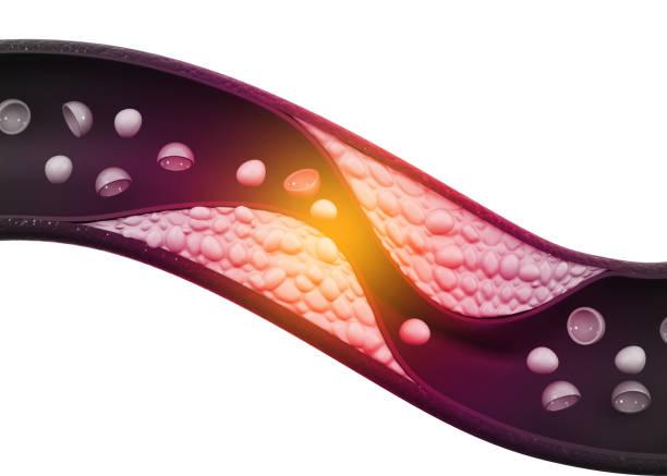 Cholesterol plaque in arteries stock photo