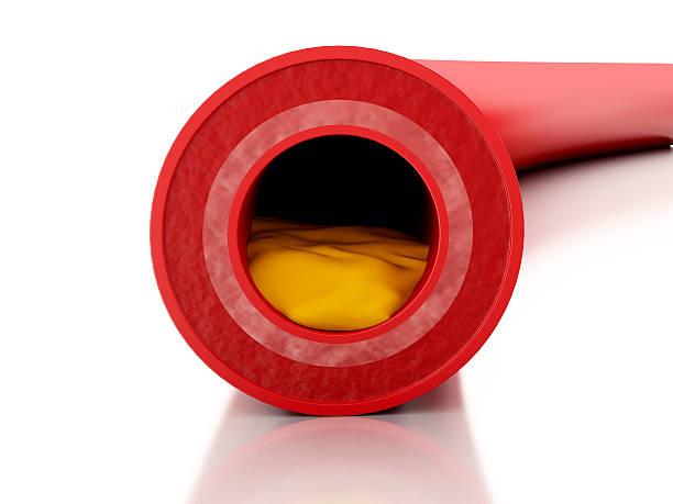 3D cholesterol plaque in artery model stock photo