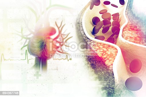 istock Cholesterol plaque in artery 694367748
