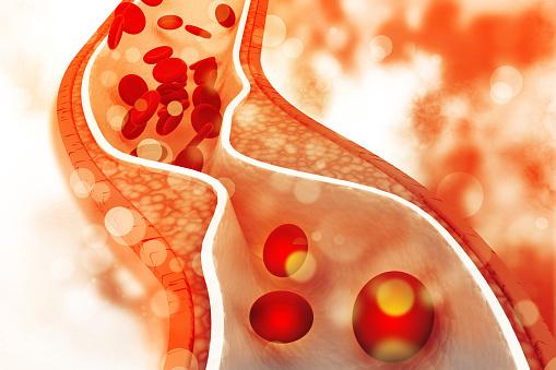 istock Cholesterol plaque in artery 894954842