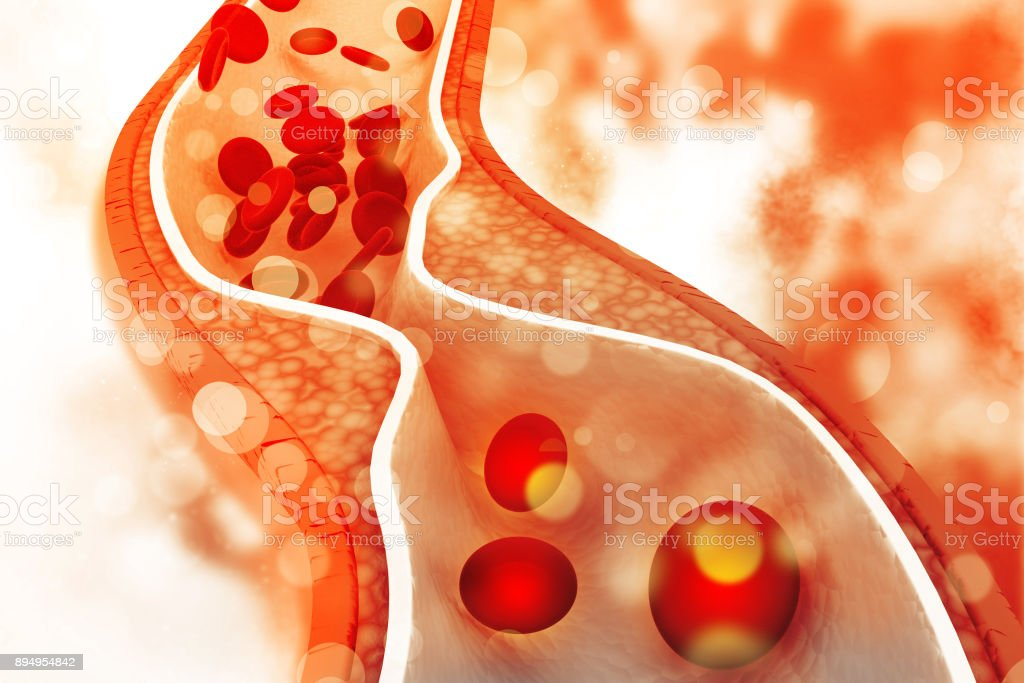Cholesterol plaque in artery stock photo