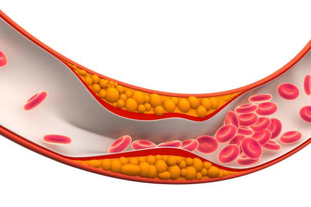 Cholesterol plaque in artery stock photo