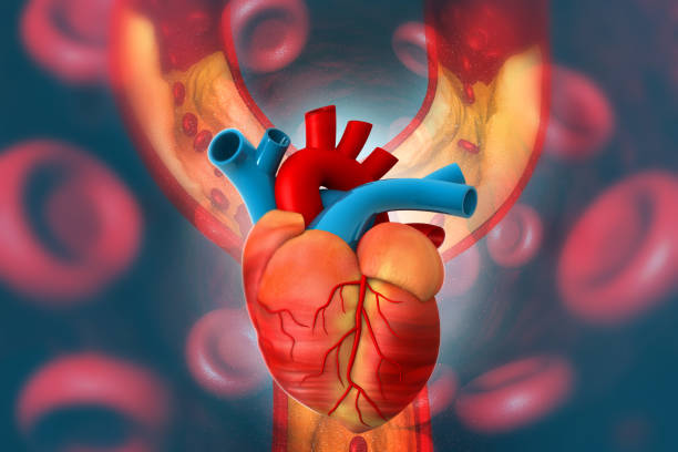 Cholesterol plaque in artery with Human heart anatomy stock photo