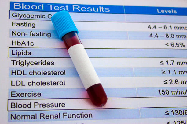 cholesterol test and blood test tube blood test tube on the results cholesterol stock pictures, royalty-free photos & images
