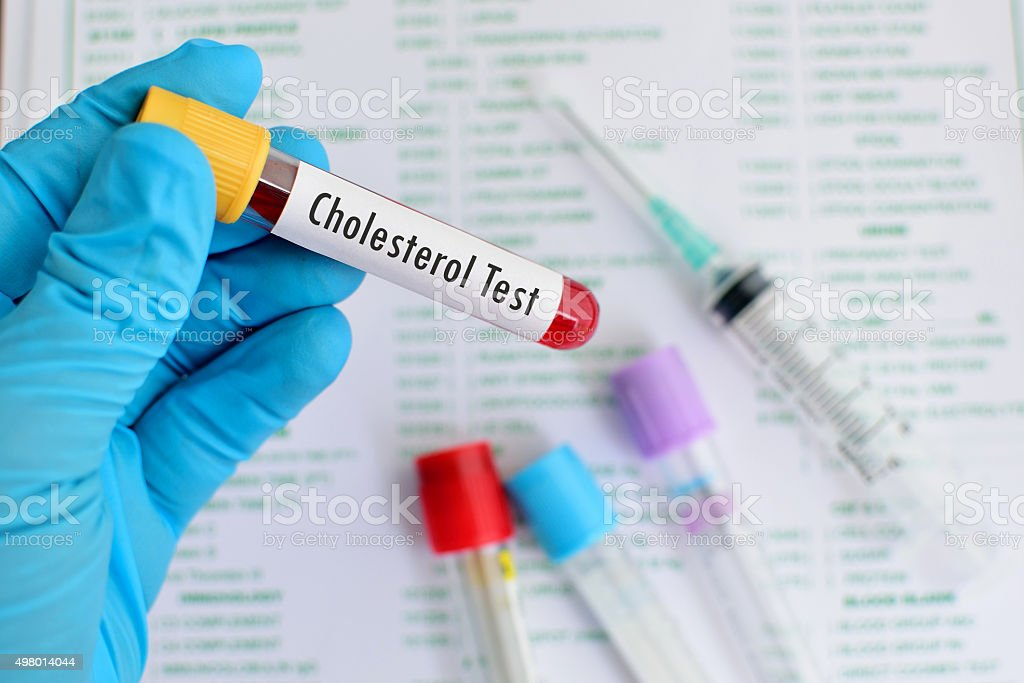 Cholesterol testing stock photo