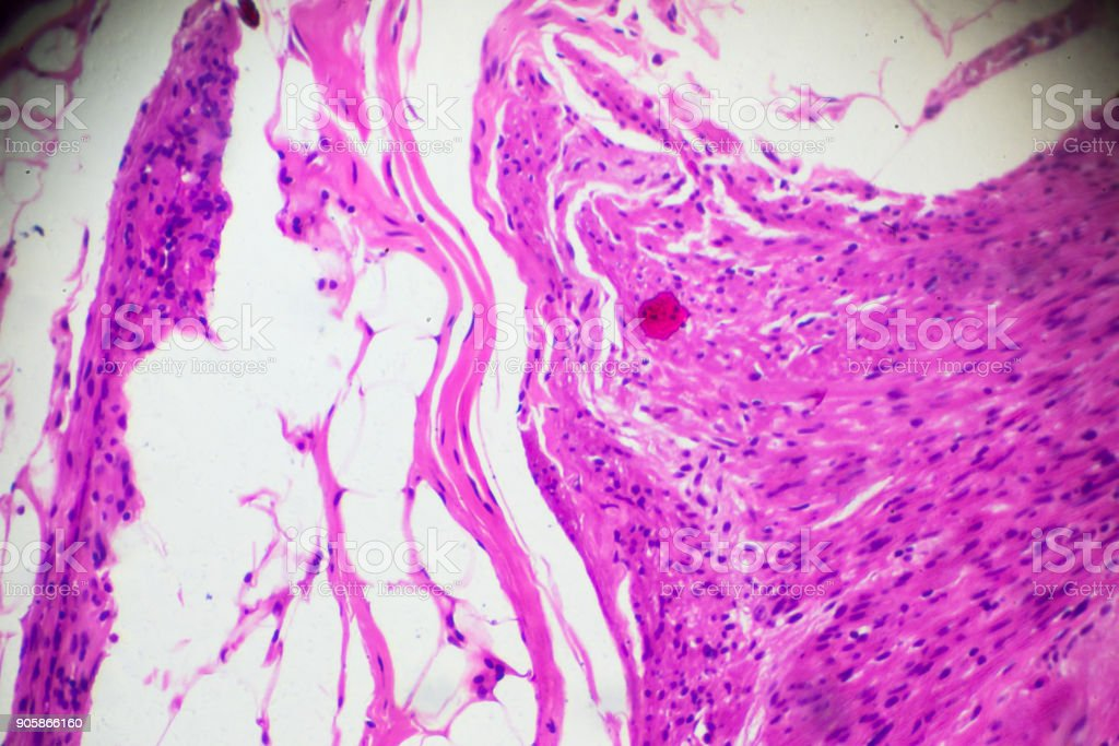 Chronic appendicitis pathology under light microscopy stock photo