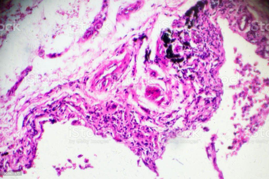 La Bronchite Chronique Sous Microscope Zoom Dans Différents Domaines ...