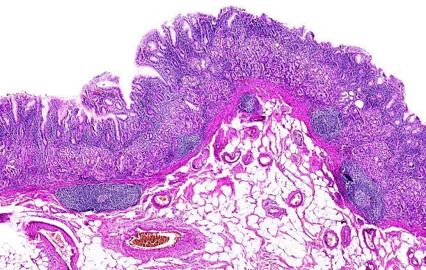 Chronic gastritis of a human stock photo